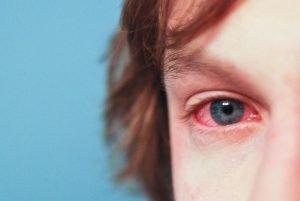 alergias ojos moho hongo panama